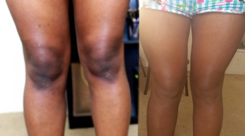 Most Women Have Dark Knees Because Of D0ggy Style –Research